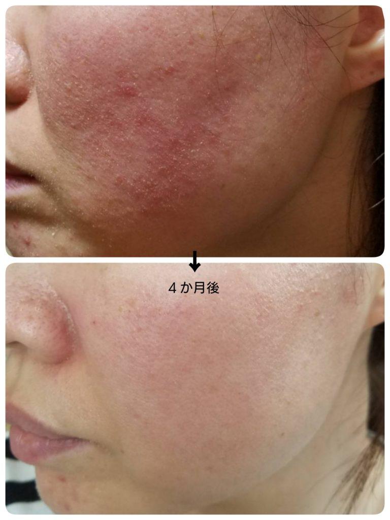 治し 脂 皮膚 炎 漏 方 性